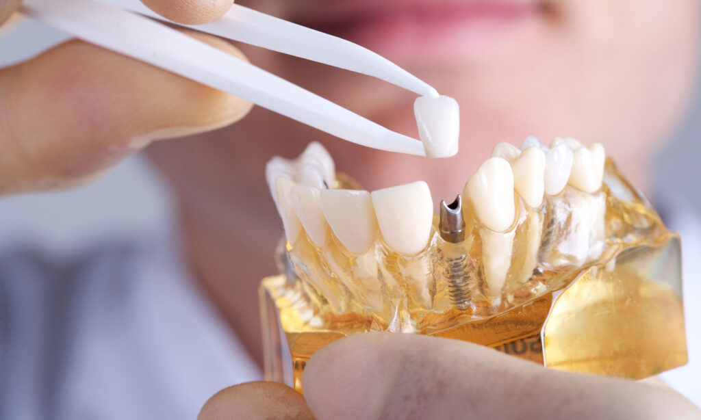 Cosmetic Aesthetic dentistry